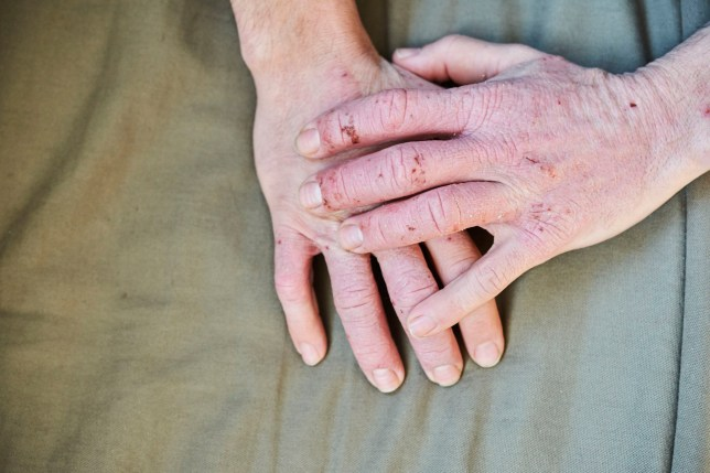 Hand eczema, is an irritation of the hands or feet, characterized by blisters on the skin
