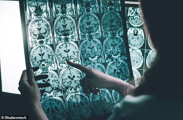 Alzheimer's disease is thought to be caused by the abnormal build-up of proteins in and around brain cells. One of the proteins involved is called amyloid, deposits of which form plaques around brain cells. The other protein is called tau, deposits of which form tangles within brain cells (stock image)