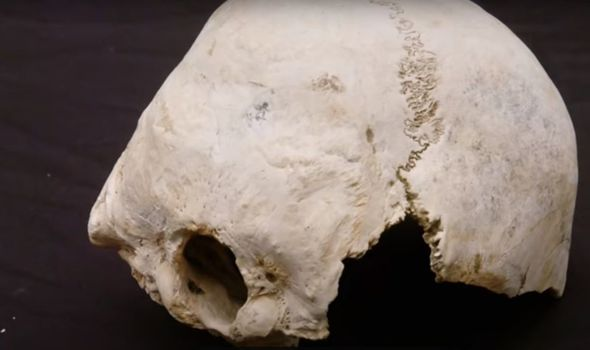 Skull discovered to have been pole-axed