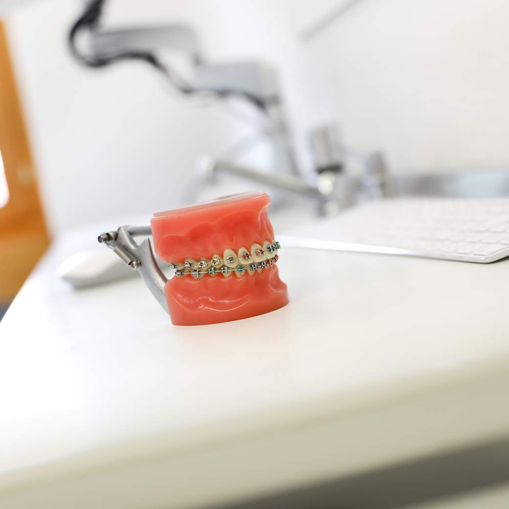 Zahnregulierung mittels Zahnspange